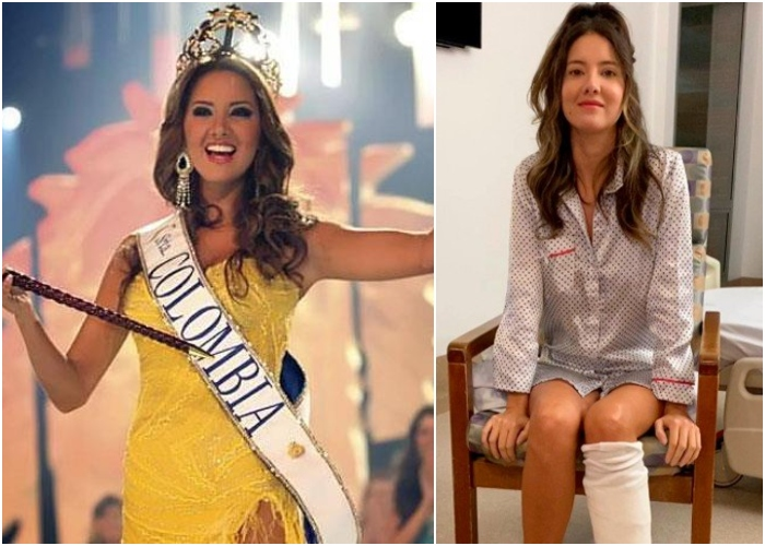 La valentía de la exseñorita Colombia, Daniela Álvarez, que conmueve al país IZIiN3